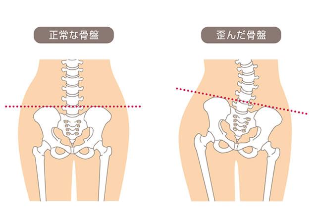 武蔵関駅で骨盤矯正整骨院整体